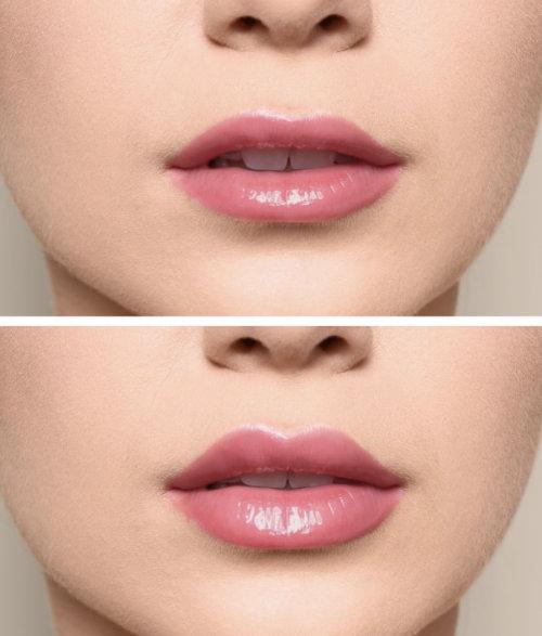 Lippenaufspritzen